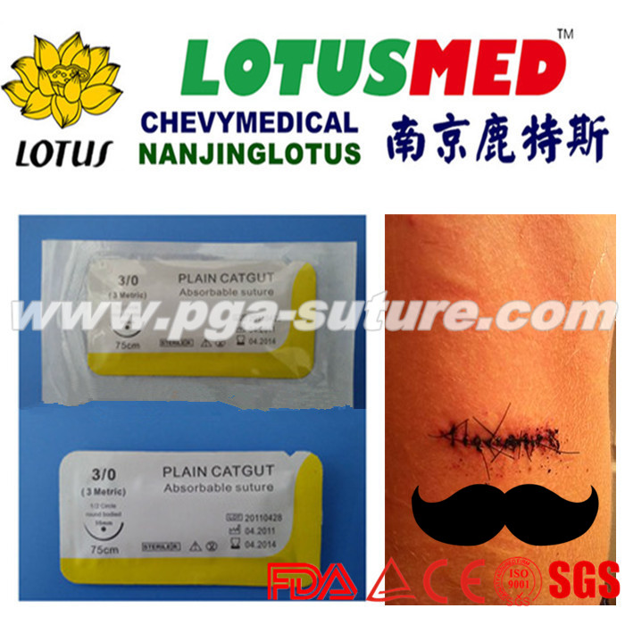 LOTUSMED High Quality And Cheap Suture