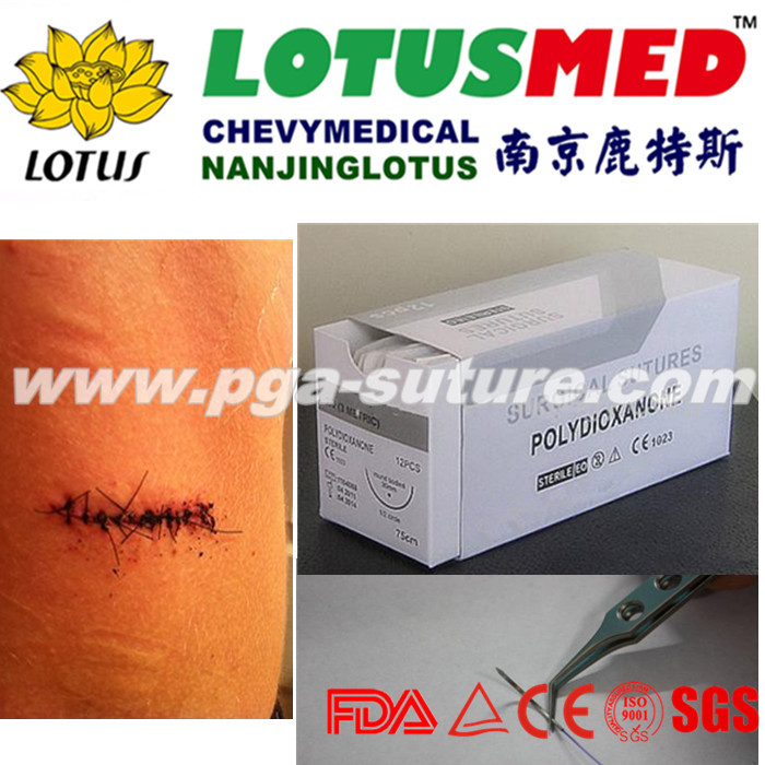 High Quality Sterile Surgical Suture